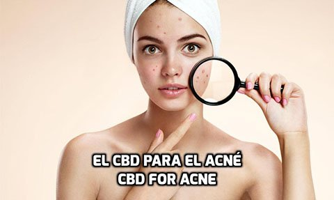El CBD para el Acné
