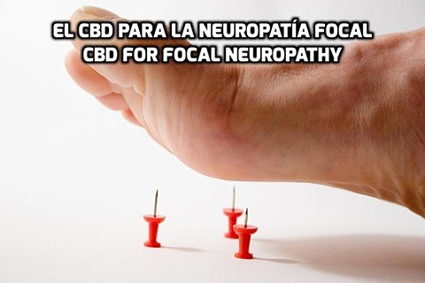 El CBD para la Neuropatía Focal