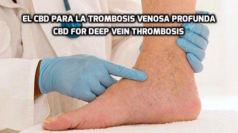 El CBD para la Trombosis Venosa Profunda