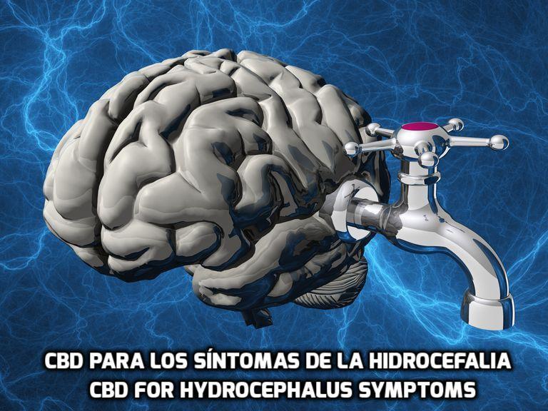 El CBD para los síntomas de la Hidrocefalia