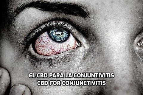 El CBD para la Conjuntivitis
