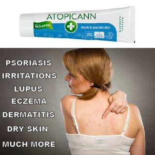 Atopicann, hemp cream for skin infection and pain