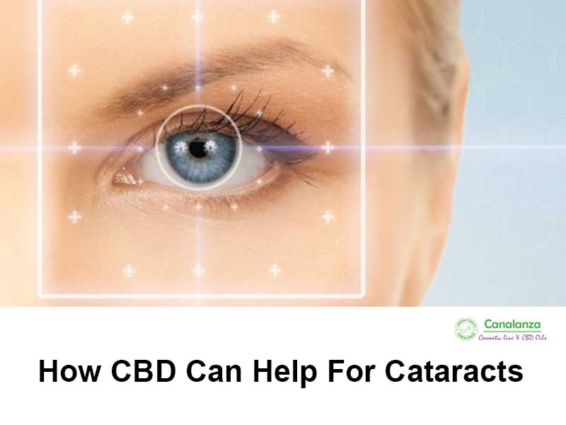how cbd can help for cataracts